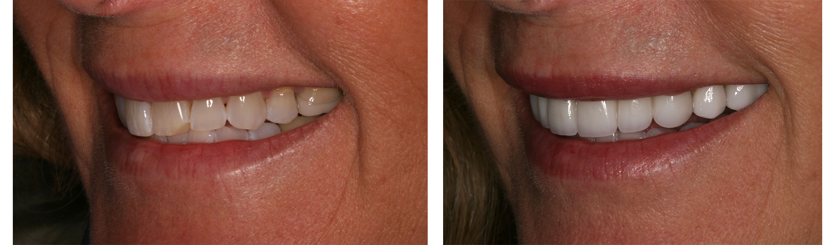 Before & After Porcelain Veneers in Danville