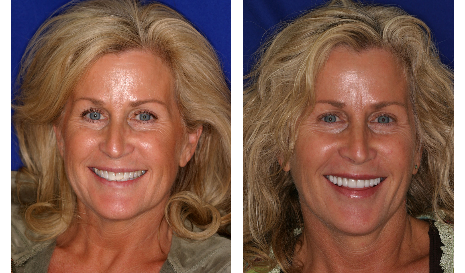 Before & After Porcelain Veneers in Danville, CA