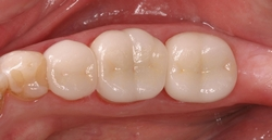 After Ceramic Crowns in Danville, CA