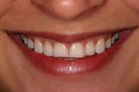 Before 2 Veneer Placements in Danville