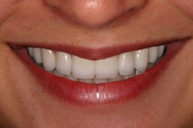 After a Full Smile Makeover in Danville