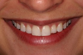 After 2 Veneer Placements in Danville