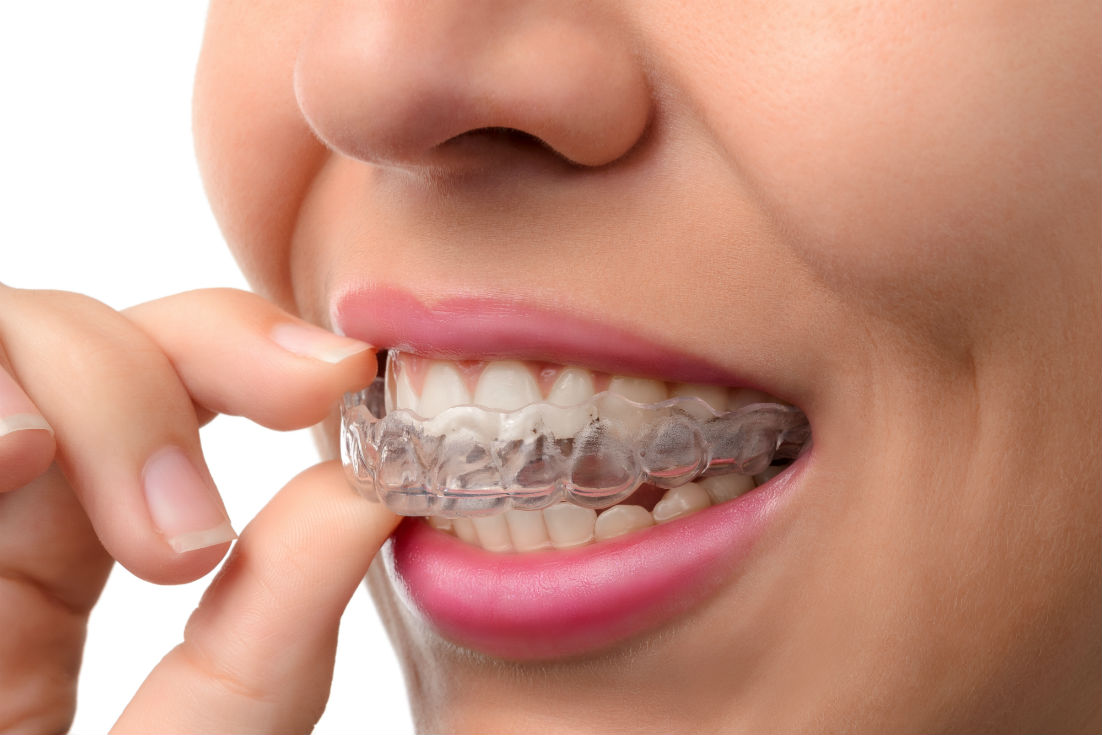 Invisalign Fort Myers FL