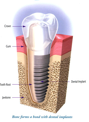 Dental Implants Fort Myers