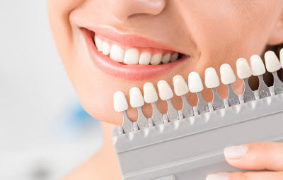 patient matching teeth color for teeth whitening treatment