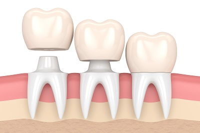 3d render of replacement crowns cemented onto reshaped teeth in gums