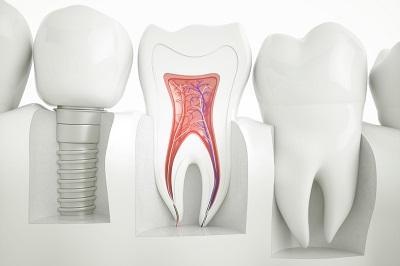 3D Rendering of anatomy of healthy teeth and dental implant in jaw bone