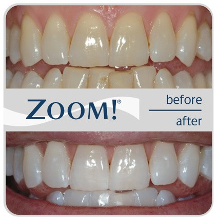 Before-and-After Picture of Zoom! Teeth Whitening System