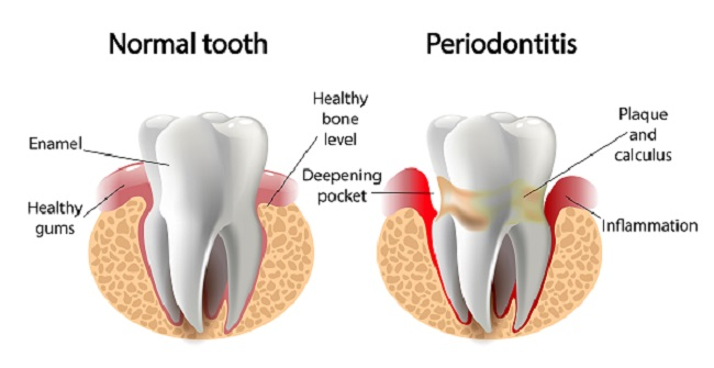 image comparing normal tooth and periodontitis