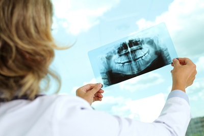 Image of female dental specialist holding and looking at x-ray