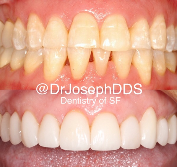 Best cosmetic dentist in San Francisco SF, Best cosmetic dentist in California, Best cosmetic dentist in Bay Area, Best cosmetic dentist in Silicon Valley, Natural porcelain Veneers, Gummy smile, Teeth whitening, Teeth straightening, Invisalign, Smile makeover, Best Esthetic dentist in San Francisco SF, Smile design, Celebrity dentist, Before and after Smile, Veneers