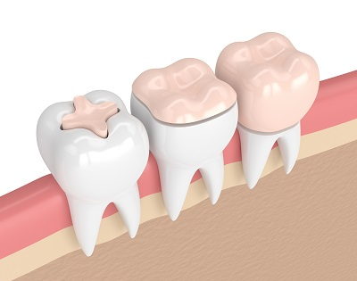 3d render of teeth with fillings and crown