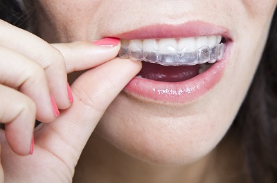 Invisalign in Poway by Twin Peaks Dentistry