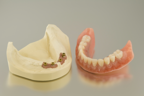 Implant-Supported-Dentures-in-Longview