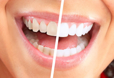 advantages of teeth whitening
