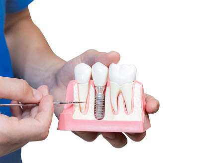close up of dental implant model