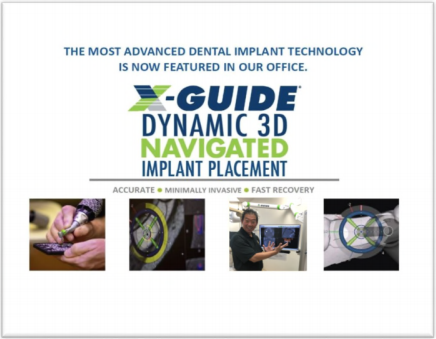 Dr. Paul Tanaka provides X-Guide 3D Navigated Dental Implants in Honolulu, Hawaii
