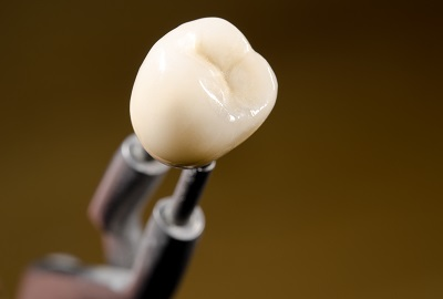 close up of ceramic dental crown