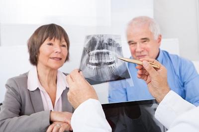 senior couple looking at dental x-ray
