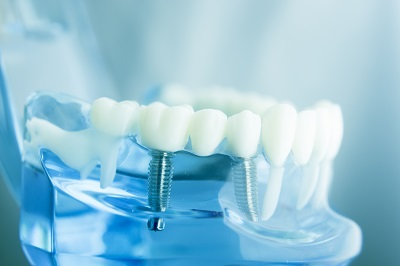 dental implant on transparent gums model