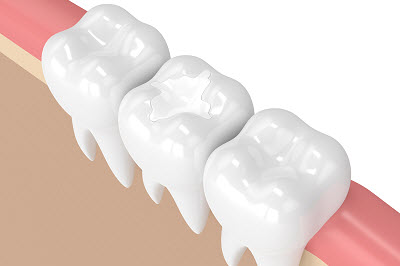 3d render of tooth with dental composite filling in gums