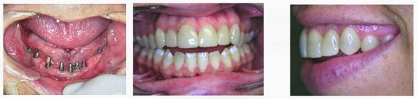 Full Dental Implants