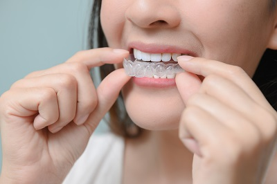 woman putting on invisalign clear aligners