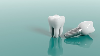 Tooth and dental implant isolated on green background