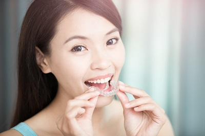 woman holding invisalign clear aligners