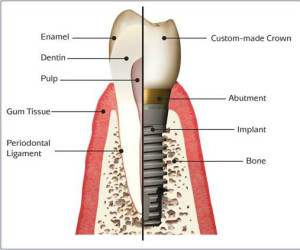 Dental Implants in Ocala FL