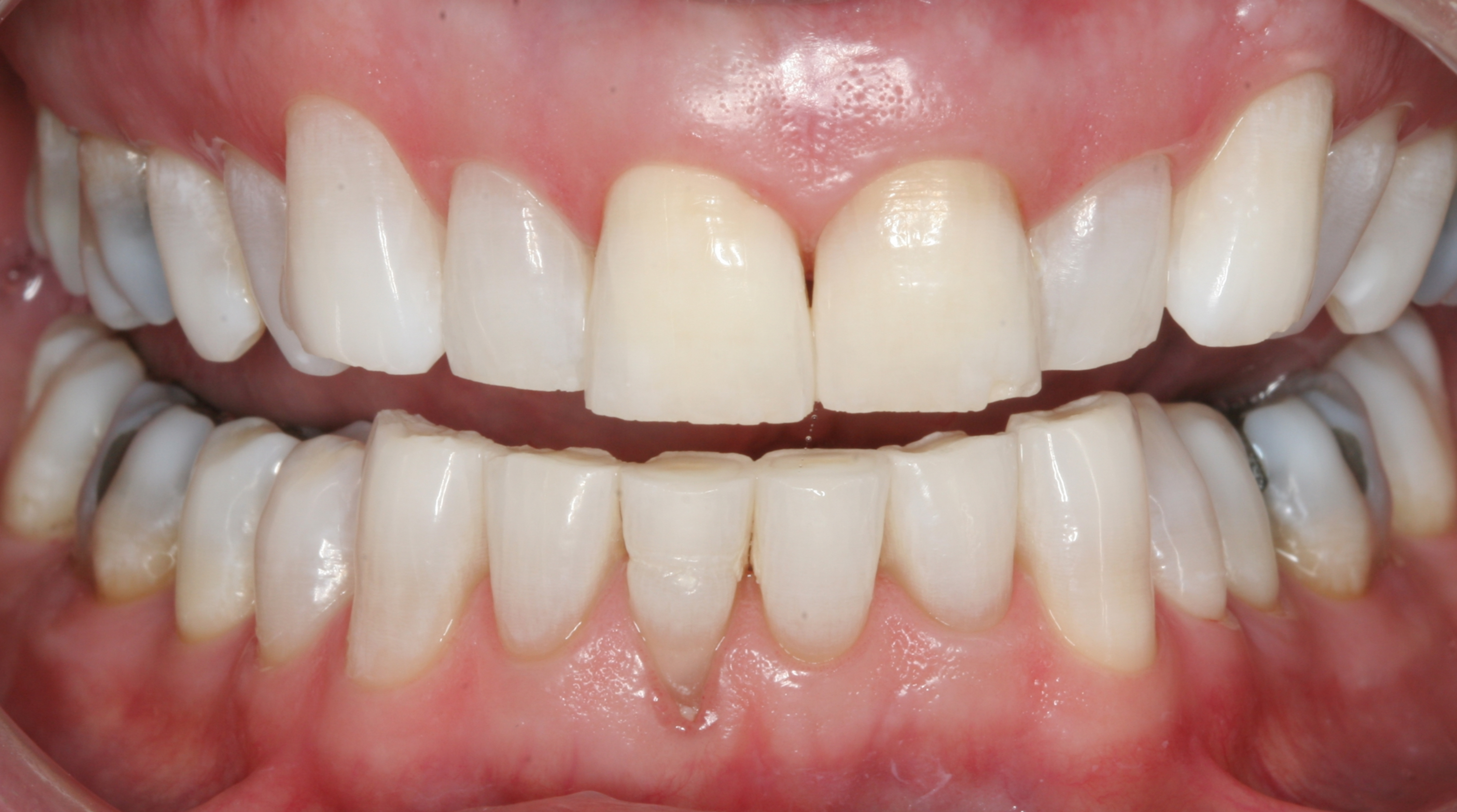 After KOR Whitening