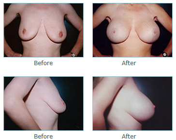 San Diego Breast Lift Surgery