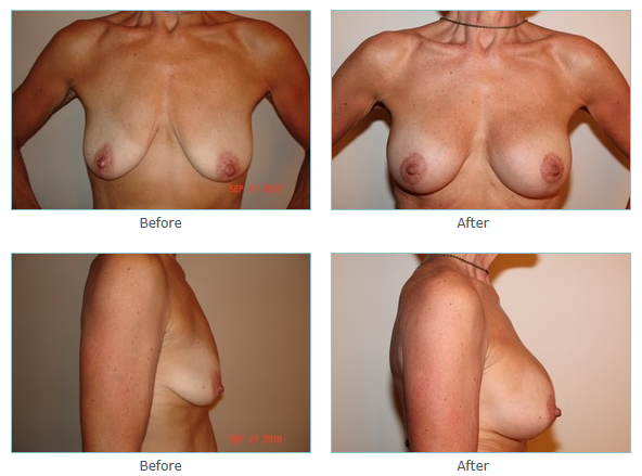 Breast Lift Surgery in San Diego