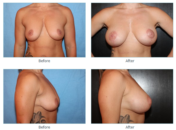 La Jolla Breast Lift Surgery