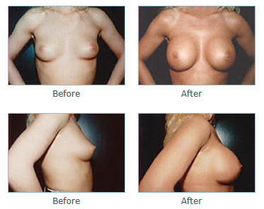 Breast Augmentation San Diego, La Jolla Plastic Surgery