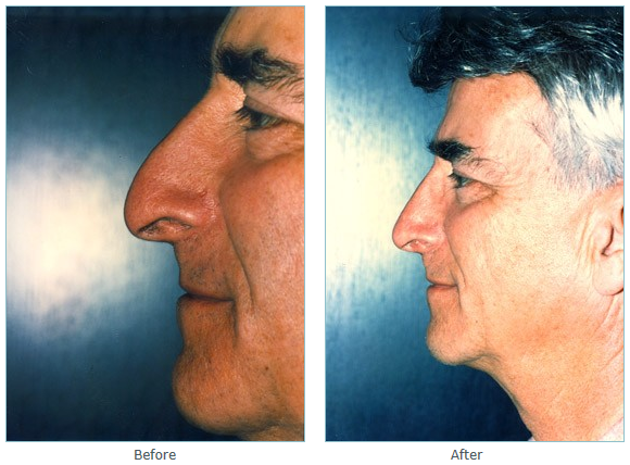 La Jolla Rhinoplasty in San Diego, Nose Job