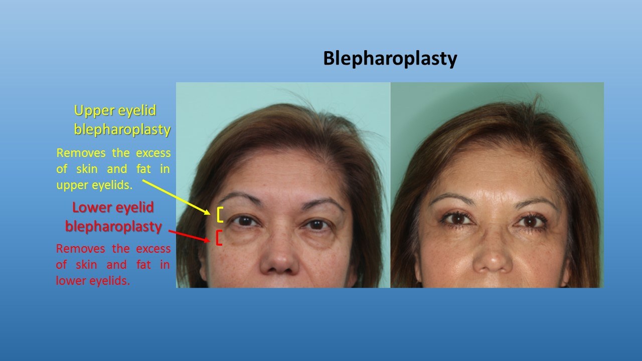 Before & after blepharoplasty Baja California, Mexico