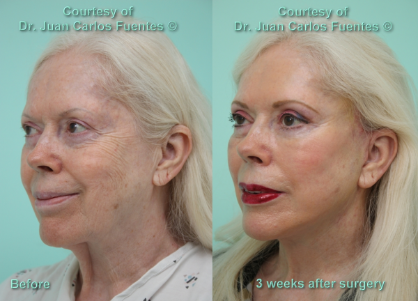 Before & after plastic surgery patient Tijuana, Baja California, Mexico