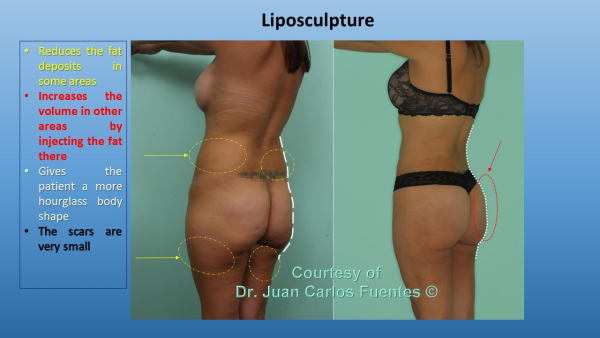 Before & after liposculpture Baja California, Mexico