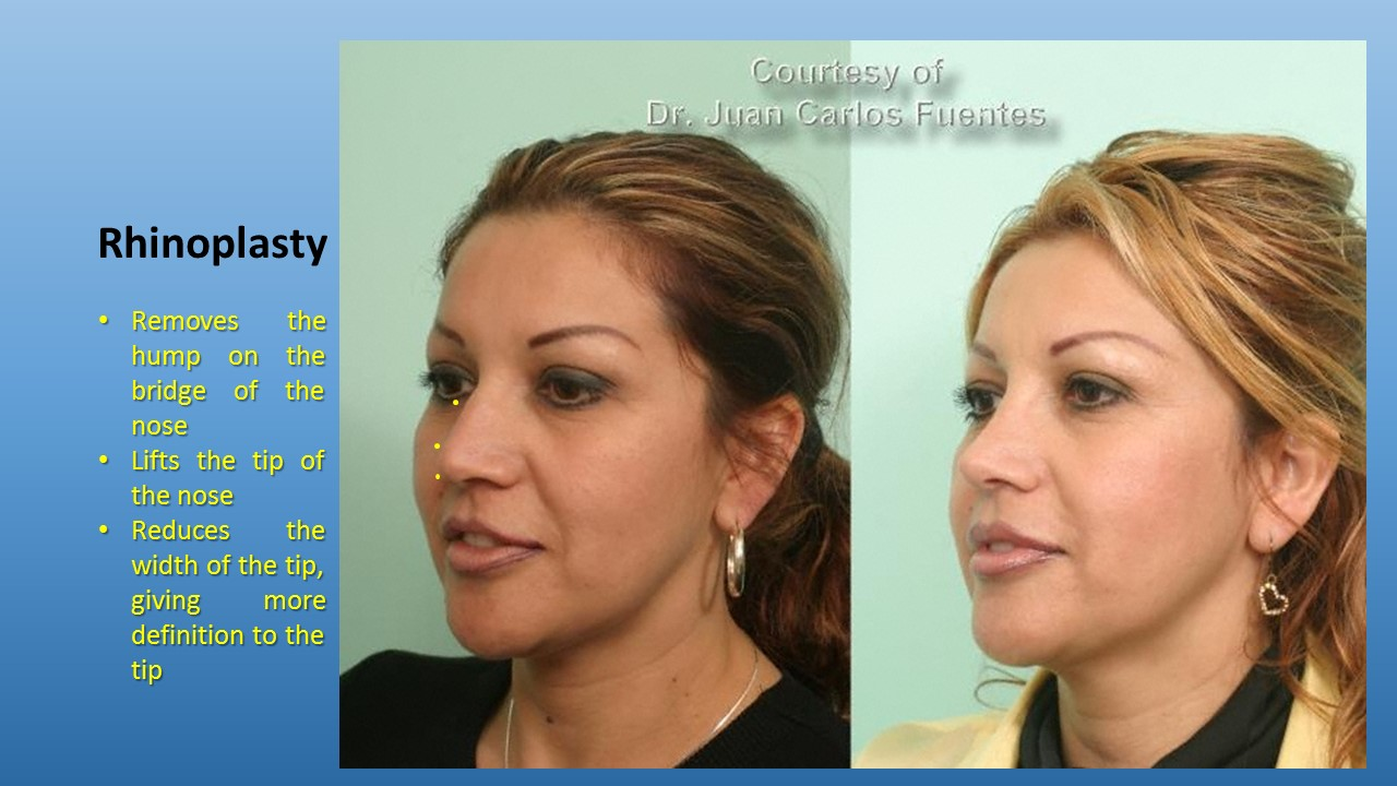 Before & After rhinoplasty Baja California, Mexico
