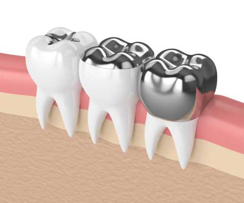 When Do Dentists Use Porcelain Fillings Instead Of Silver Fillings