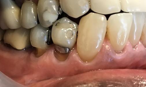 Pinhole Gum Rejuvenation Riverside Ca Denine Rice Dds