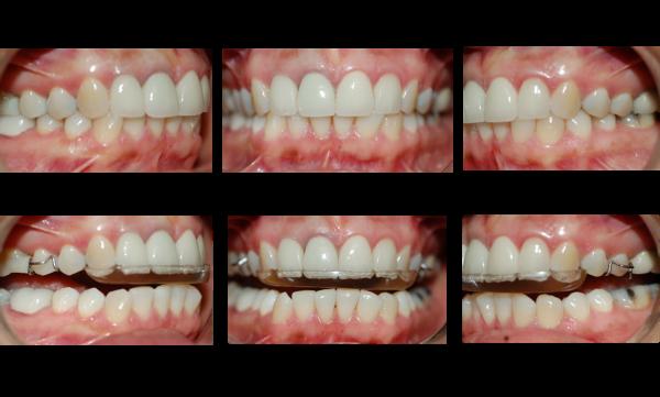 Familycare Dental Tmd Treatment Case Review Escondido Ca
