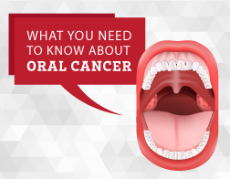 Oral Cancer Warning Signs