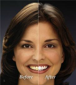 Before and after picture of woman smiling who was treated with ZOOM! Teeth Whitening.