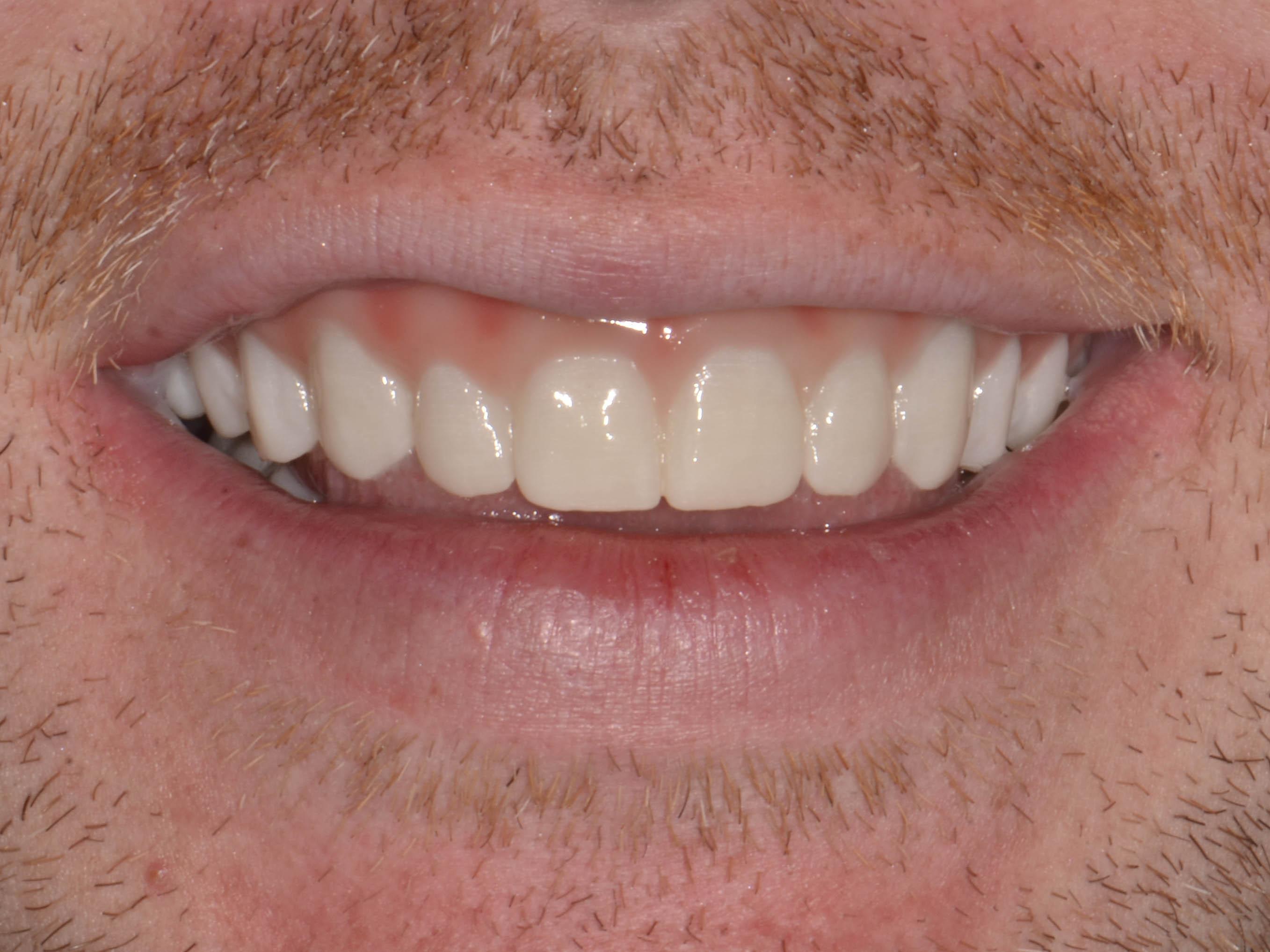 Teeth In An Hour St Louis Mo St Louis Dental Implants