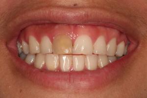 Deep Teeth Whitening in Bowie