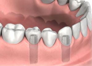 Dental Implants Fort Myers FL | Permanent Tooth Replacement