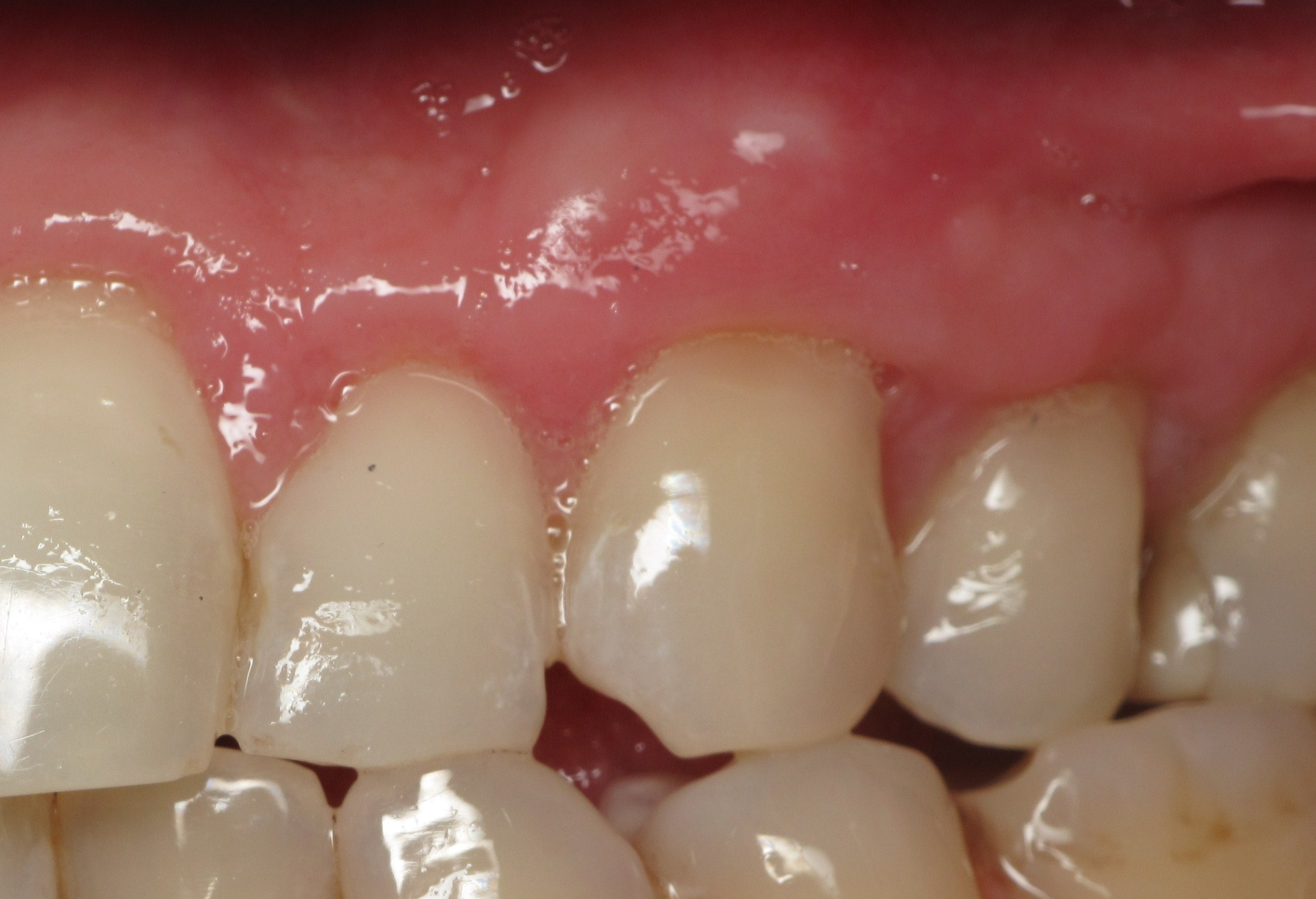 Thin Receding Gums And Dental Implants What S Important Video By