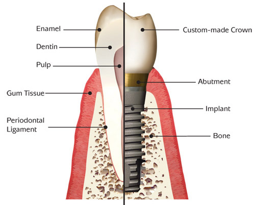 Dental Implant Information Tampa Fl Tampa Bay Periodontics